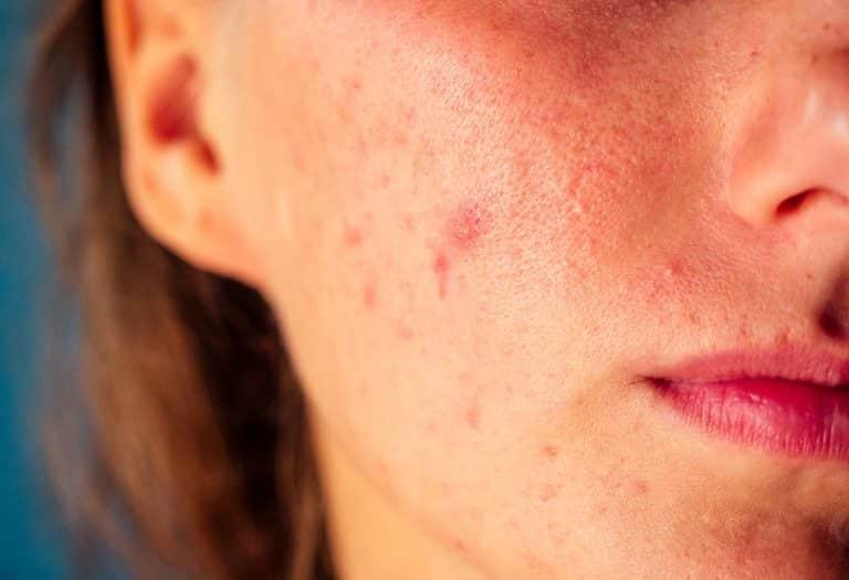 Des moyens simples pour lutter contre les boutons et l'acné en été ...