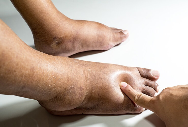 A doctor explains the causes, symptoms and complications of edema and the treatment methods.